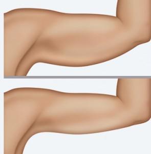 braquioplastia-cirurgia-plastica-braco