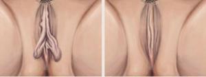 ninfoplastia