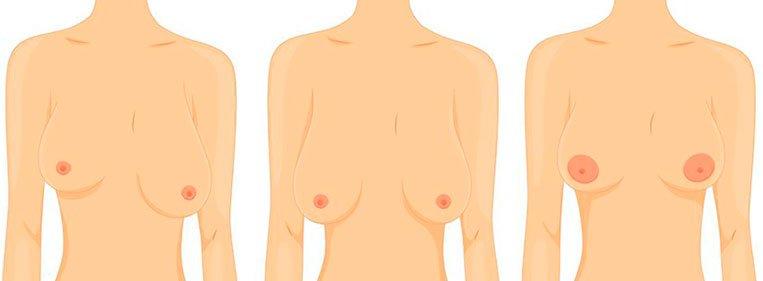 mamoplastia.reparadora.imagem