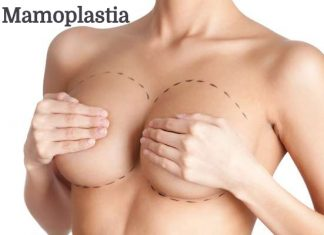imagem.mamoplastia