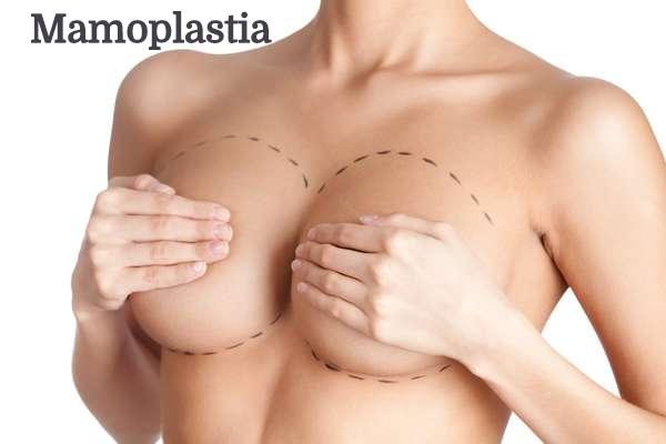 6c6a9a909 Mamoplastia  Com Prótese. De Redução - Dr Etienne Cirurgia Plástica