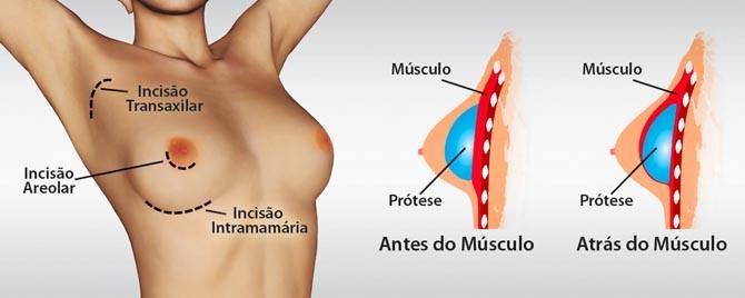 mamoplastia.aumento.imagem