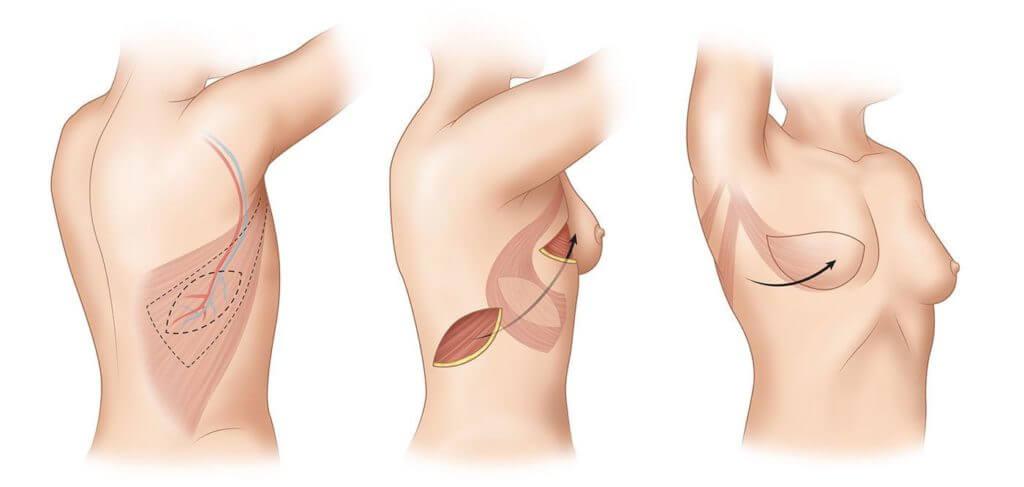 Mamoplastia Reconstrutiva.imagem