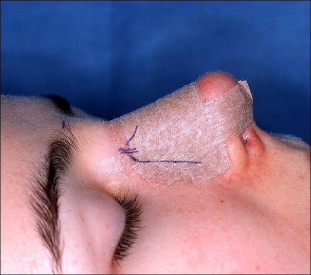 Quanto tempo usar curativo após rinoplastia