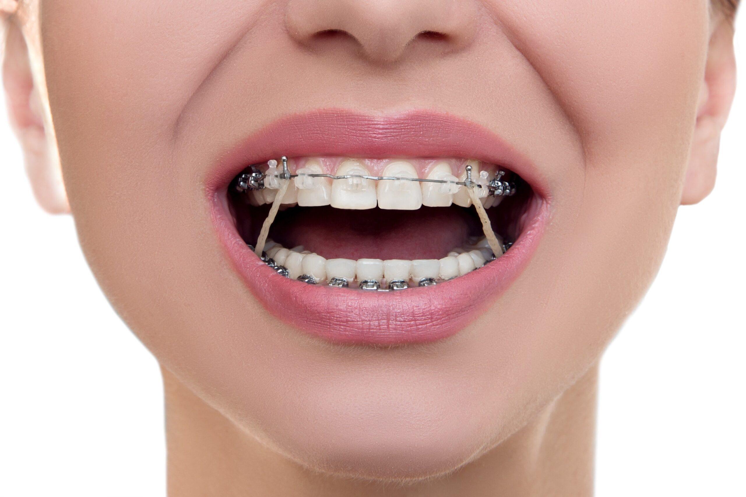 quem usa aparelho nos dentes pode fazer rinoplastia?