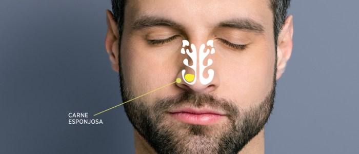 O que fazer quando se tem carne esponjosa no nariz?
