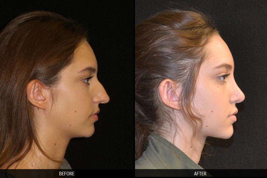 Cirurgia plástica no nariz