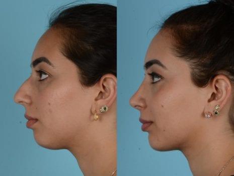 Como fazer rinoplastia com aparelho nos dentes?